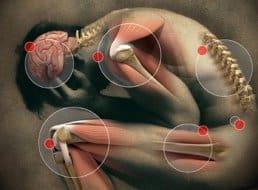 arthritis pain treatment 1